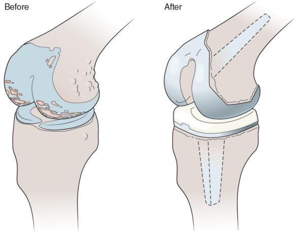 Figure 3.7 Joint replacement surgery (arthroplasty) involves replacement of part or all of a damaged joint with a metal, plastic, or ceramic prosthesis in order to return the joint to normal pain-free movement.