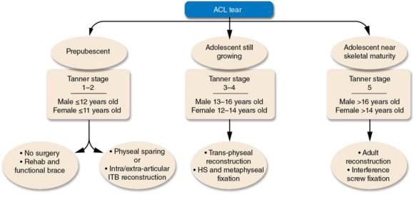 Figure 15.3 Surgical decision making for anterior cruciate ligament injuries in skeletally immature patients.