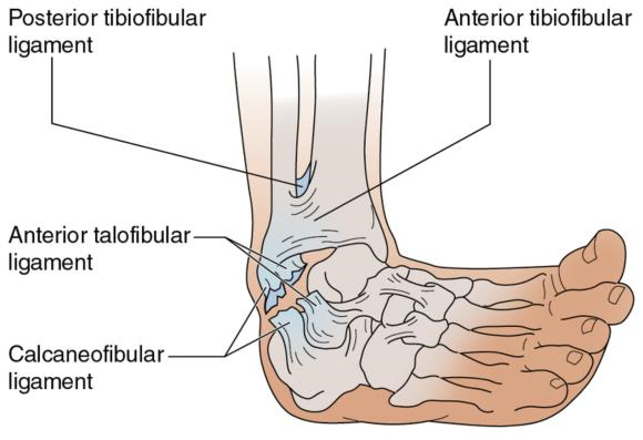 Figure 16.22 Injury to the lateral ligaments of the ankle.