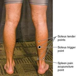 A comparison of trigger, tender, and acupuncture points