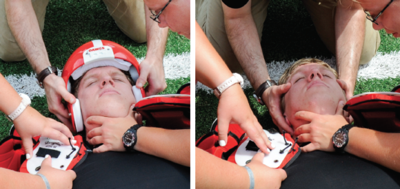 Figure 9.24 Helmet removal with no face mask.