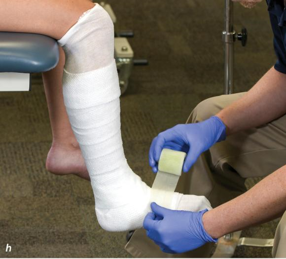 Figure 2.33 Non-weight-bearing short leg cast to immobilize the foot and ankle. Position the foot and ankle in the functional position, which is 0° of dorsiflexion. Measure 4 inches (10 cm) beyond the tibial tubercle and 4 inches (10 cm) beyond the metatarsal heads to determine the amount of stockinette needed. Apply the stockinette, and cut a slit in the stockinette across the front part of the ankle to eliminate any folds. Beginning at the metatarsal heads, roll the cast padding circumferentially from distal to proximal, overlapping by 50% to end at the tibial tubercle. Do not cover the heel at this time. Apply extra padding to protect the malleoli. Cast padding should now be applied to the heel. Starting at the metatarsal heads, begin applying the fiberglass from distal to proximal, overlapping the previous layer by 50%. Initially close in the foot and ankle with fiberglass, followed by the lower leg. Fold down the stockinette and secure the ends of the stockinette with the final layers of fiberglass. Using the palm and heel of your hand, mold the casting material as needed. () Completed non-weight-bearing short leg cast.