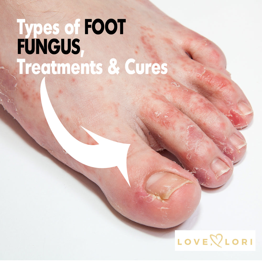 Types of Foot Fungus — Athlete's Foot Symptoms and Treatment