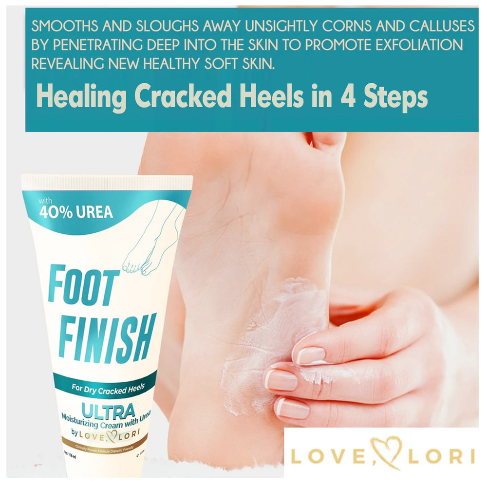 How To Heal Cracked Heels In 4 Easy Steps!