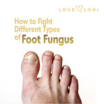 Types Of Foot Fungus And How To Fight Them At Home