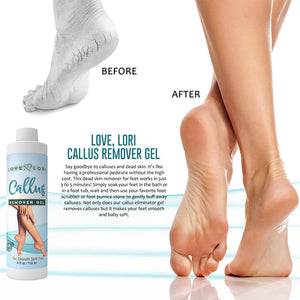 Load image into Gallery viewer, Foot Callus Remover Gel By Love, Lori