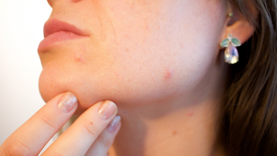 Acne Questions Answered by Dr. Z