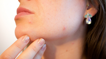 Your Top Acne Questions Answered