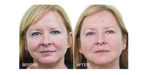 Cathy Before & After Transformation with MD Complete