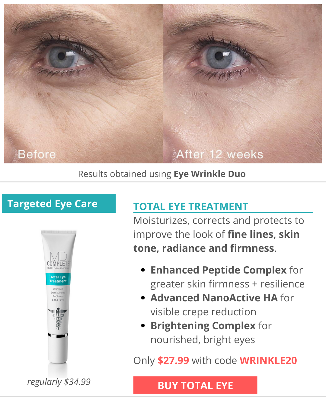 Clinically proven eye rejuvenation with Total Eye Treatment