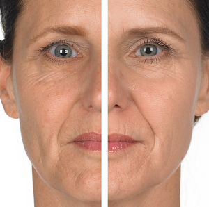 Wrinkle & Radiance Remedy Before & After MD Complete