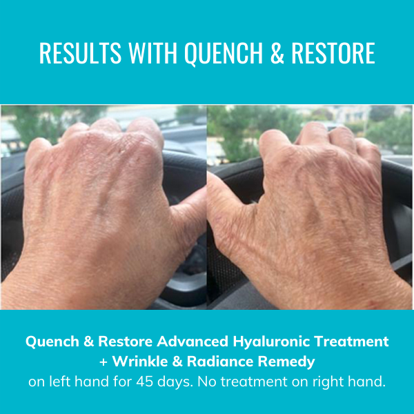 Quench & Restore + Wrinkle & Radiance Remedy for Hands