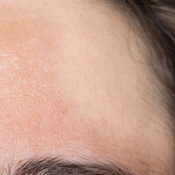 Help for Hyperpigmentation Sufferers