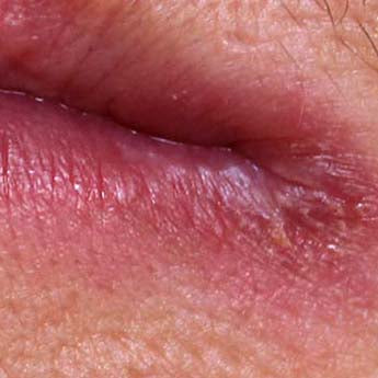 Skin Conditions on and Around Your Mouth