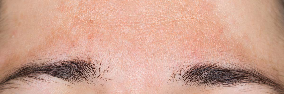 Pigmentation on forehead