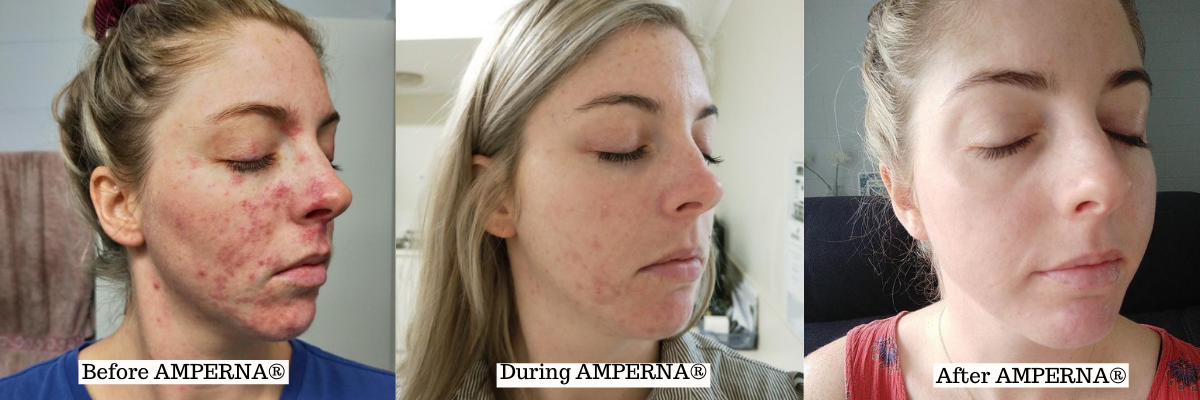 AMPERNA® Topical Steroid Withdrawals Journey