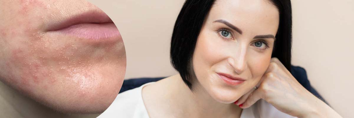 AMPERNA Skincare coaching for Acne and Rosacea