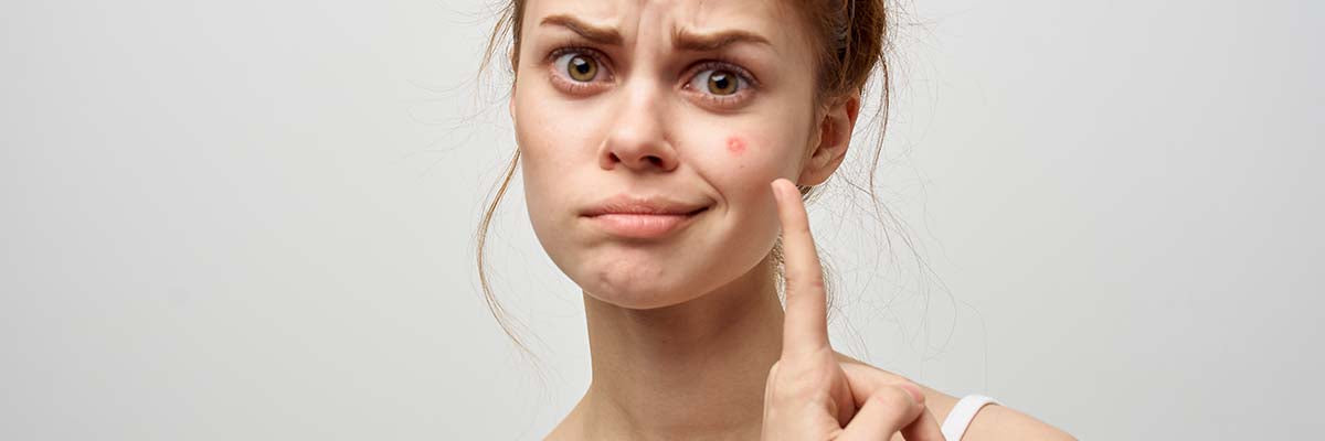 AMPERNA® Drying Acne Does More Harm