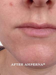 Are you suffering from Perioral Dermatitis? | AMPERNA