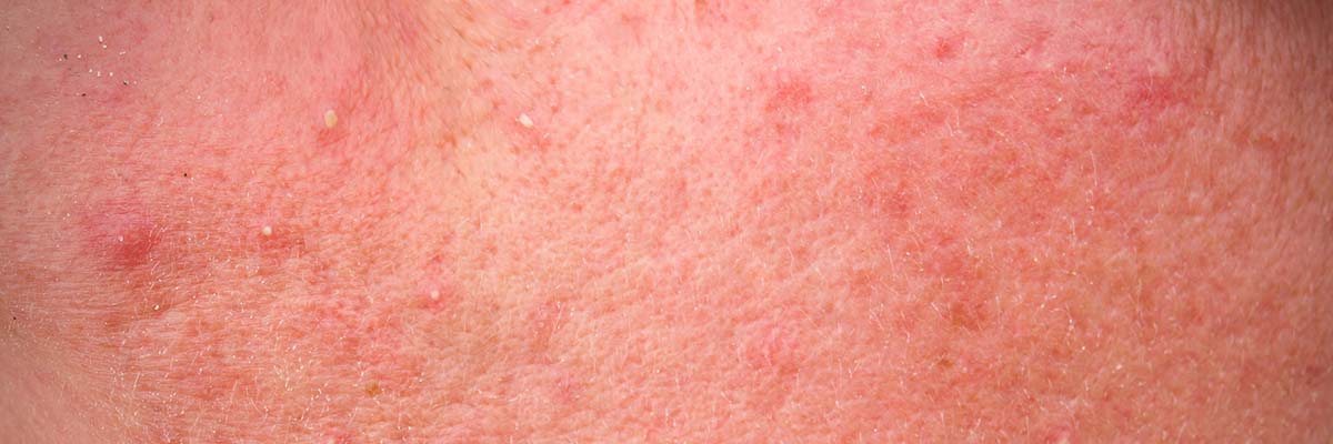 Rosacea affected skin