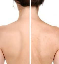 Back Acne Before and After with Powderma Back Acne Treatment