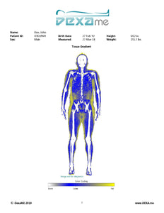 DexaME Full Body Composition Scan