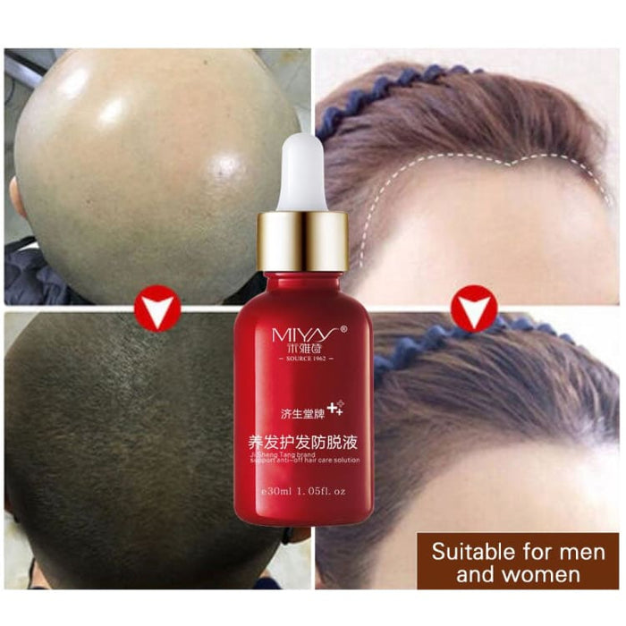 Hair Loss care product - Hair Loss Products