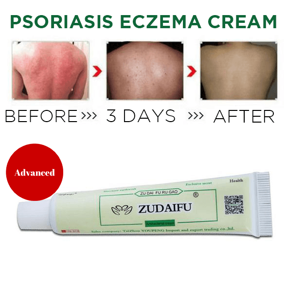 Psoriasis and Eczema Cure Cream
