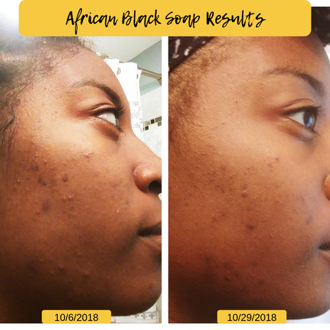 African Black Soap Results on Acne Skin 2018
