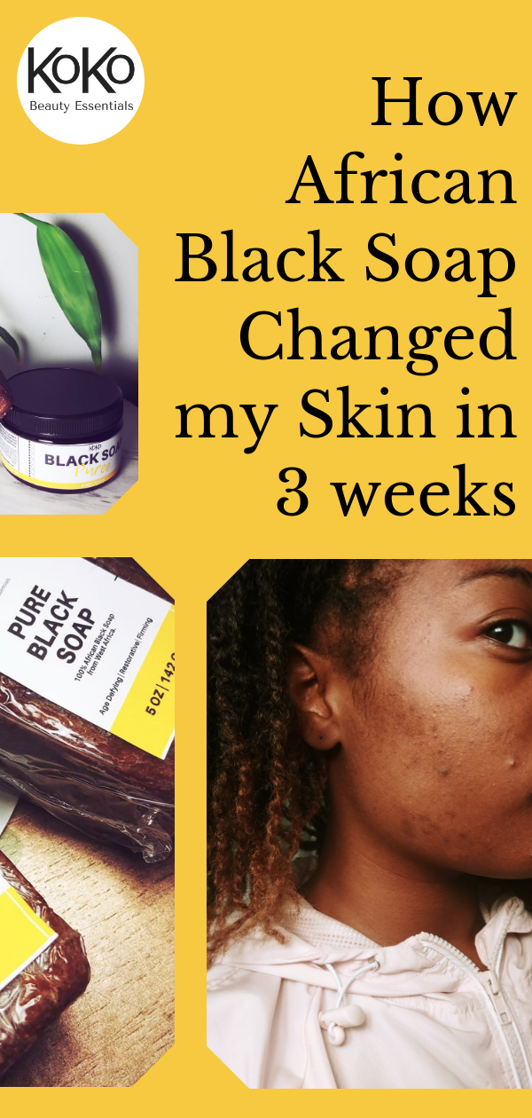 How African Black Soap Changed my Skin in 3 weeks KoKo Beauty Essentials 2018