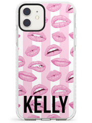 Pink Stripes & Lips iPhone Case by Case Warehouse ®