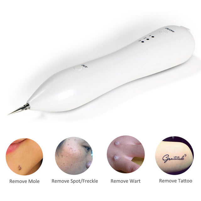 Freckle, Skin Mole, Dark Spot, Tattoo & Wart Tag Removal Machine