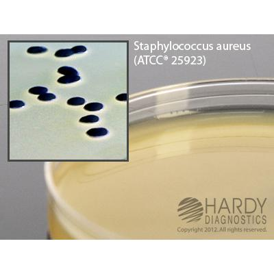 Baird Parker Agar, for Staphylococcus, 15x100mm plate, Hardy Diagnostics