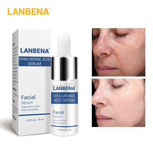 Face Cream Moisturizing Acne Treatment Skin Care Whitening