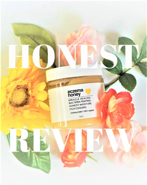 Guest Review: Eczema Honey