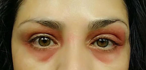 woman with eczema inflamed itchy red skin on eyes