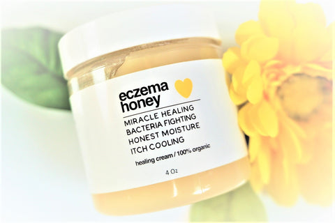 photo of honey healing cream for eczema and other skin conditions like psoriasis, dermatitis, dry and itchy skin and eczema