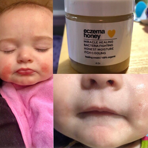 before and after photos of baby with eczema and rosacea on cheeks with a jar of our eczema honey cream that relieves itching and provides a cooling and soothing effect