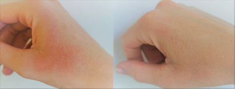 before and after image of eczema sufferer who is using eczema honey co healing cream on her hands that had eczema