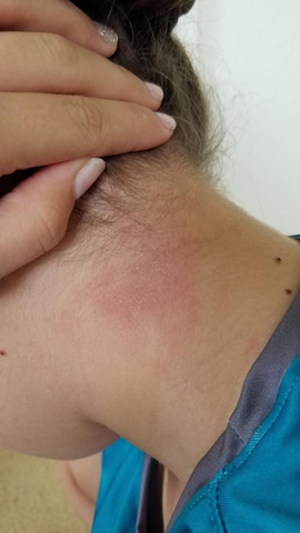 daughter with red eczema rash on back of neck