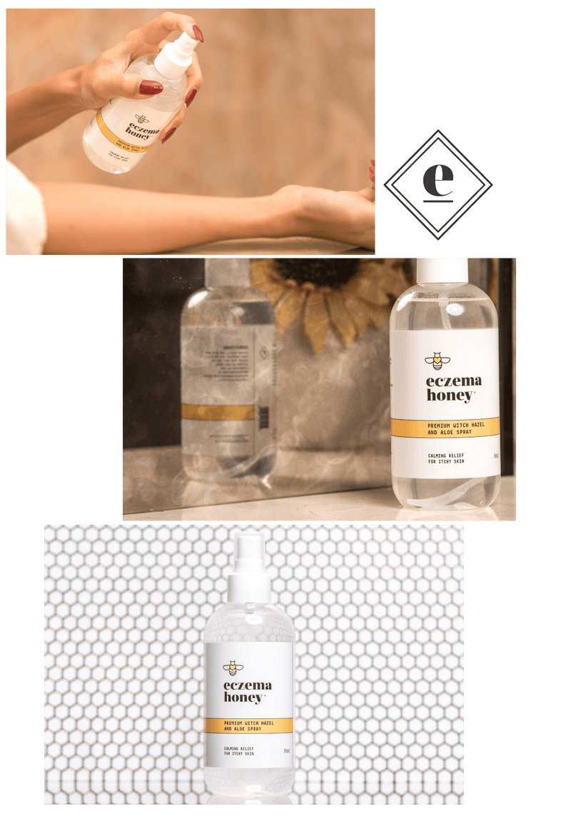 Eczema Honey Premium Witch Hazel and Aloe Spray Subscription