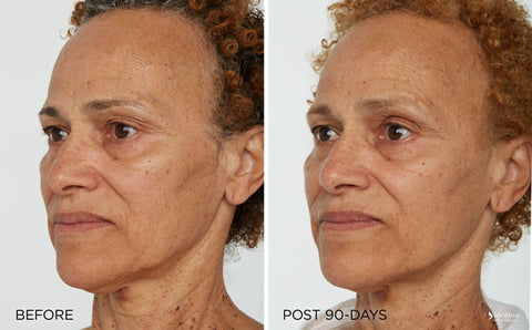 Led Light Treatment Before And After Gallery Iderma