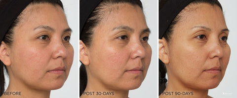 Led Light Treatment Before And After Gallery Iderma Youth Restoring Masque