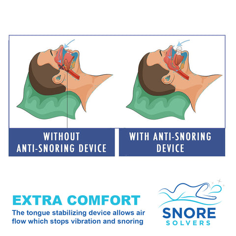 75% Off for a Limited Time! Snore Solvers Tongue Retainer Anti Snoring  Device for Sleep Apnea, CPAP Users and other Snoring Problems