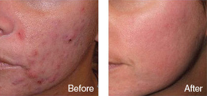 before and after acne scar treatment derma roller system image
