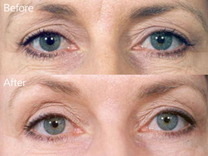 derma roller system before and after image