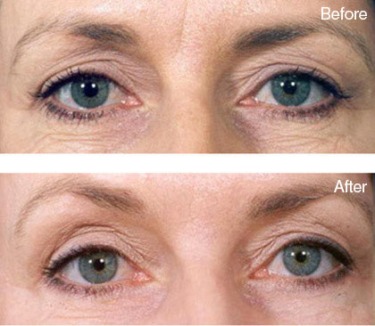 before and after eye bag treatment derma roller system image