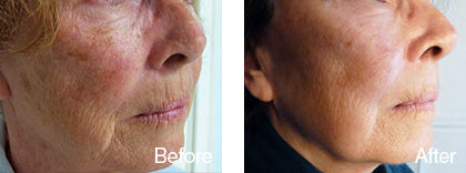 before and after skin smoothening treatment 2 derma roller system image