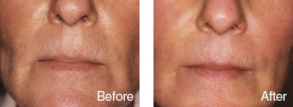 before and after skin smoothening treatment 3 derma roller system image