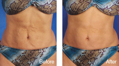 before and after stretch mark treatment derma roller system image